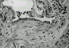 Patterns of Lung Repair (7)