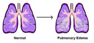 Acute Cardiogenic Pulmonary Edema (5)