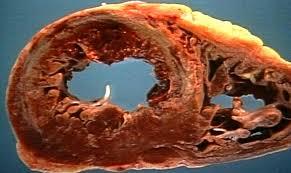 Acute Cardiogenic Pulmonary Edema (15)