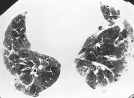 Fatal Pulmonary Aspergillosis Presenting as Acute Eosinophilic Pneumonia in a Previously Healthy Child (5)