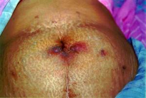 Mycobacterium gordonae: A Treatable Disease in HIV-Positive Patients - Results (2)